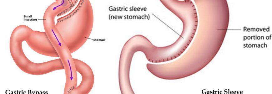 uppföljning gastric bypass