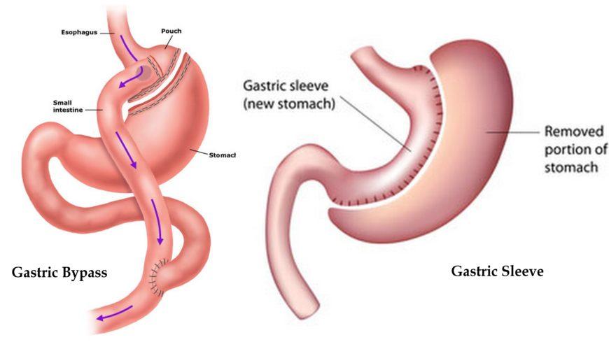 skillnad mellan gastric bypass och gastric sleeve