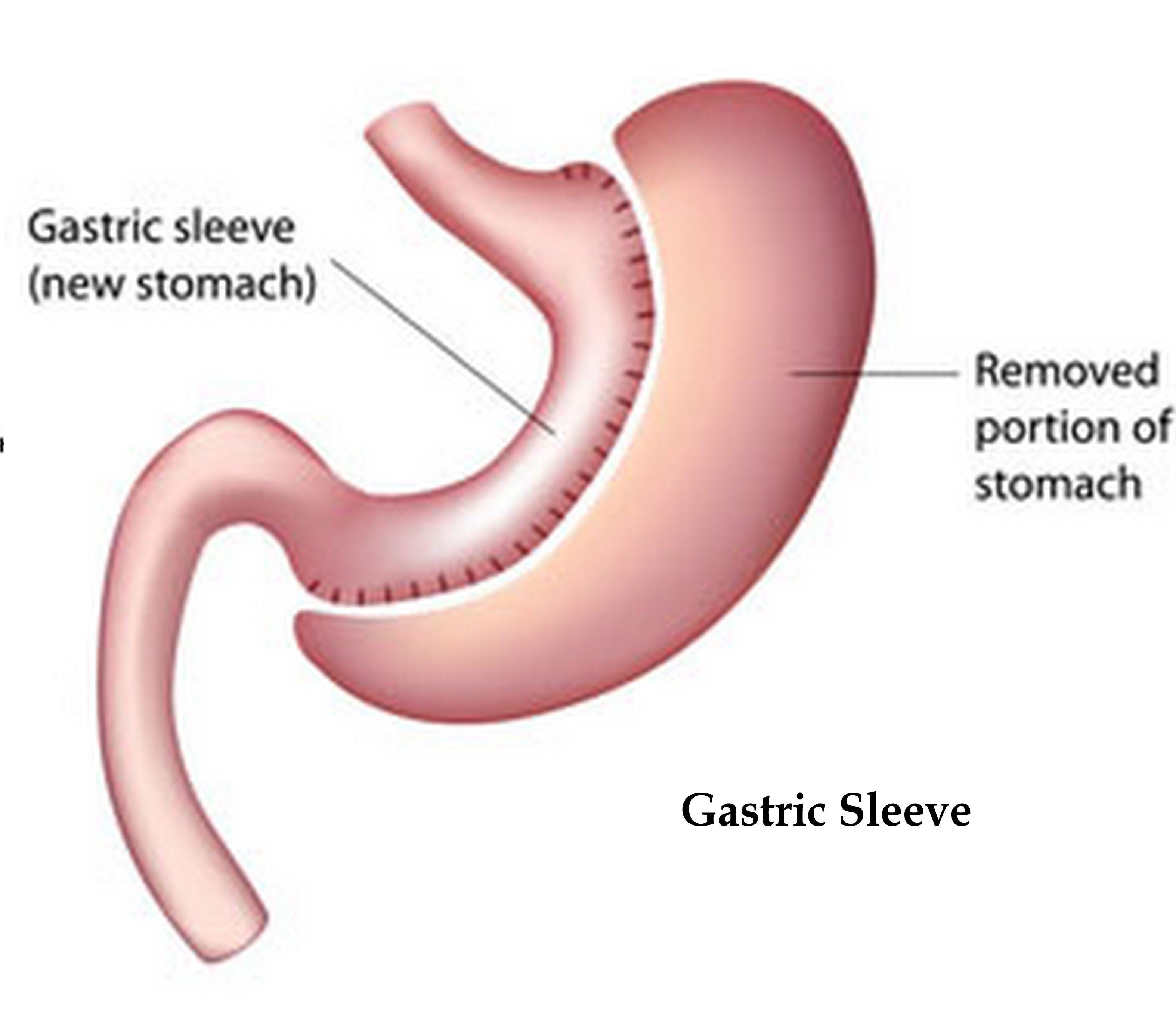 Kan hungerkänslorna komma tillbaka efter en gastric sleeve?