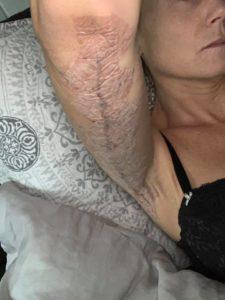 Armplastikoperation på Reformkliniken sista delen