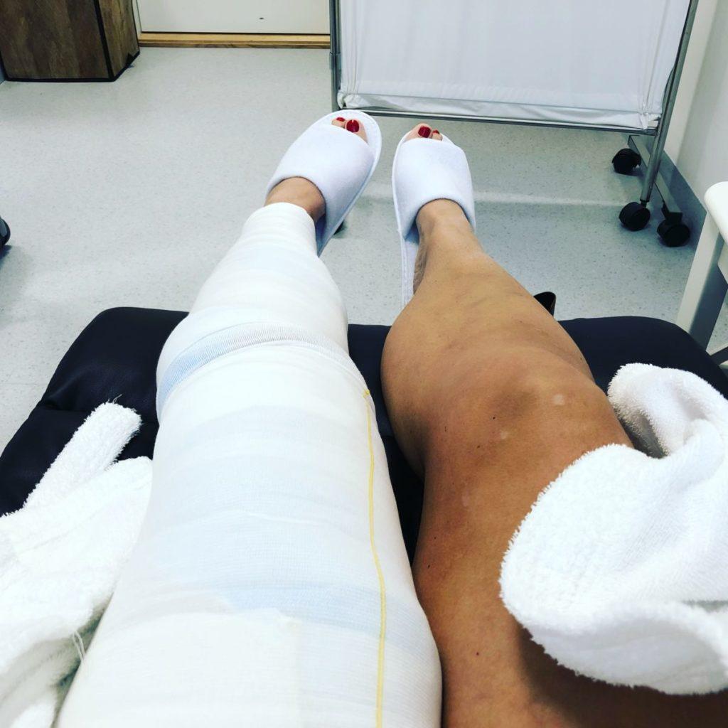 ont efter åderbråcksoperation laser