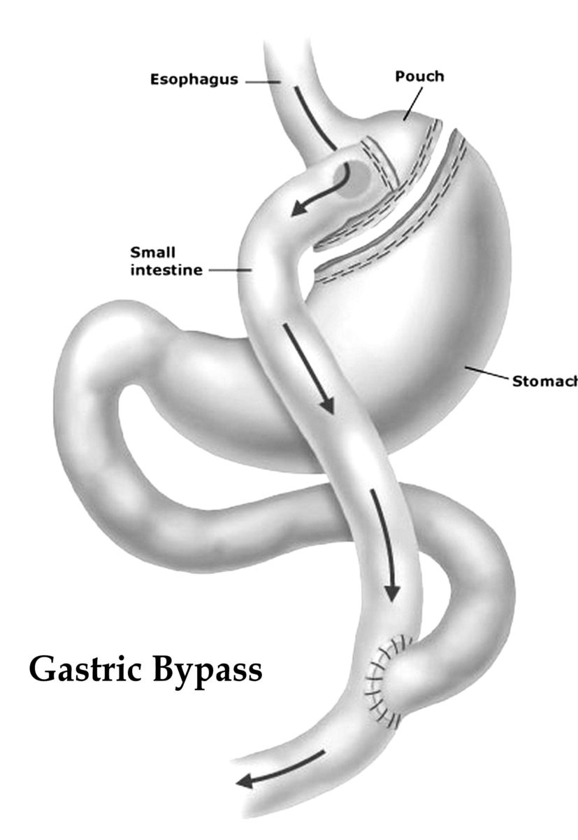 Min Gastric bypass operation 2/12 – del 1