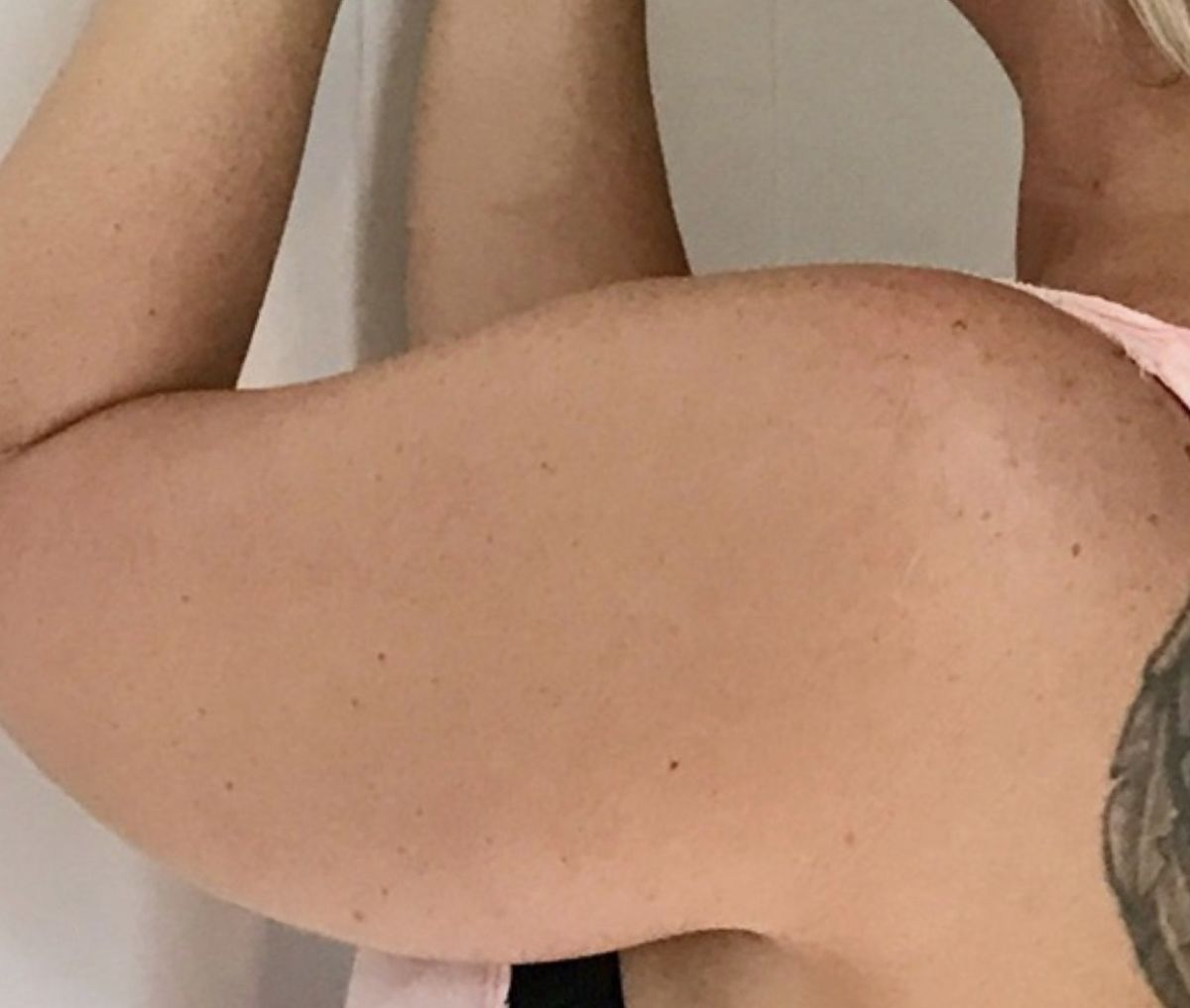Hur ser armarna ut efter operationen på Reformkliniken
