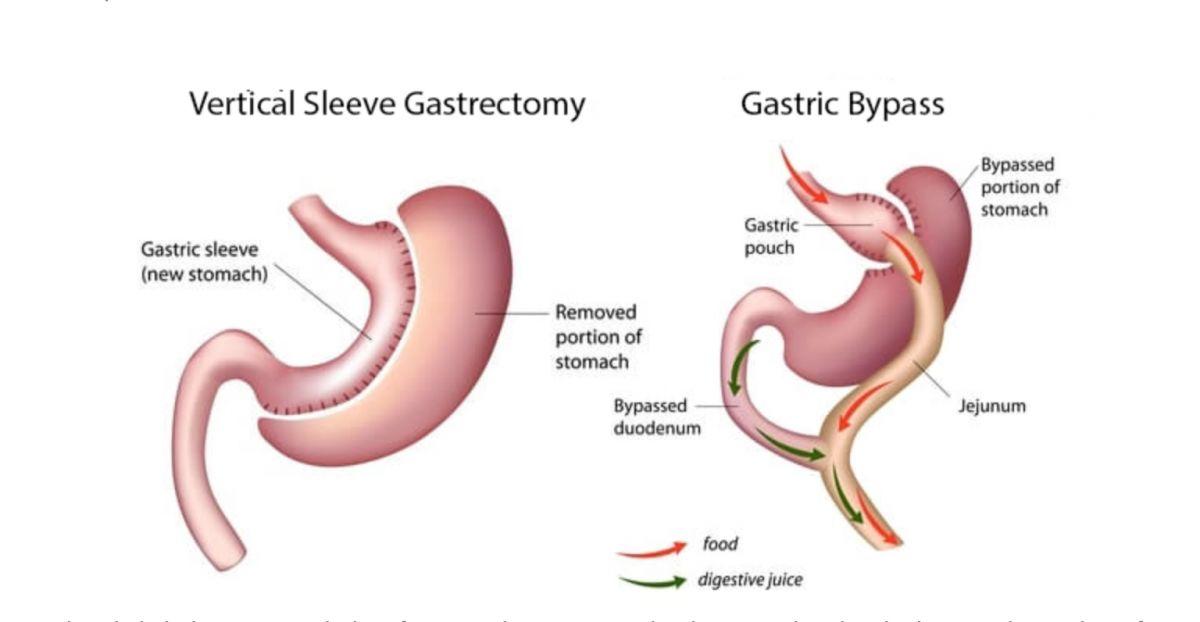 Varför valde jag Gastric sleeve framför Gastric bypass?