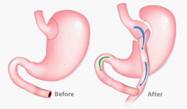 Min Gastric bypass operation 2/12 – del 2