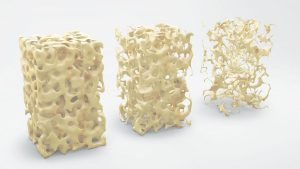 Skelett bentäthet kalciumbrist
