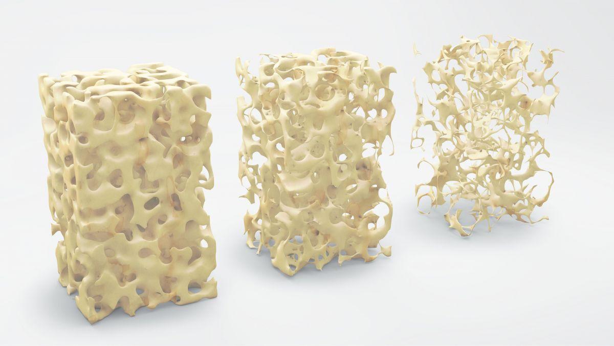 Benskörhet efter  Sleeve Gastrectomy och Gastric Bypass