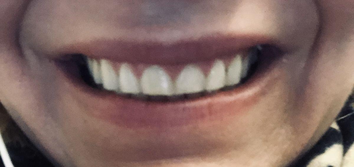 Tandhälsa efter en överviktsoperation